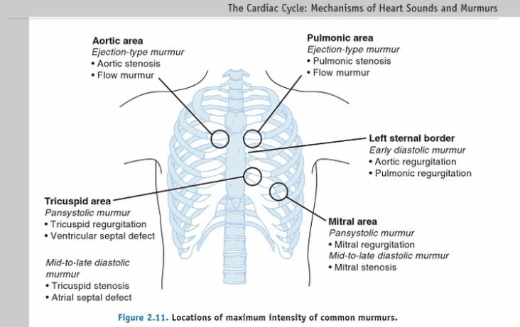 location of heart murmurs