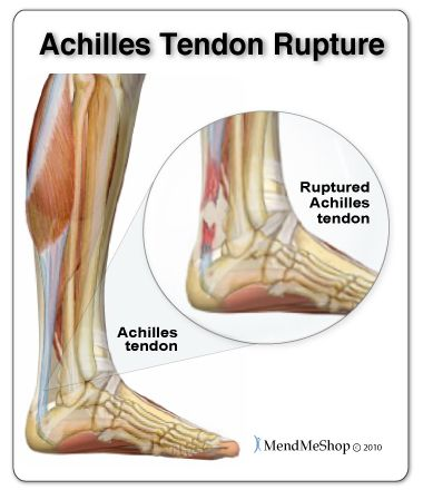 Re-injury to your Achilles tendon can create a massive ...