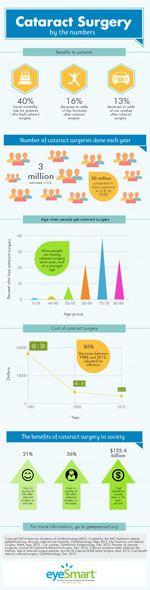 Cataract Surgery infographic thumbnail