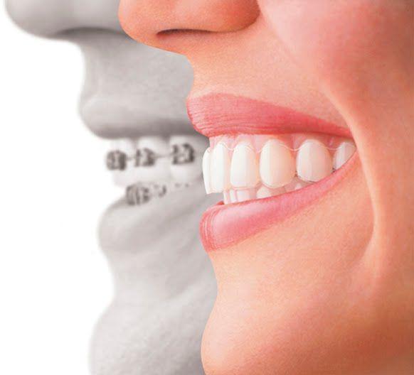 teresina piaui implantes dentarios ortodontia luiz gustavo oliveira especialista dentista clinica odontologica dentes dentarios implantodontista tratamento de canal endodontia periodontia enxerto osseo melhor invisaling invisivel