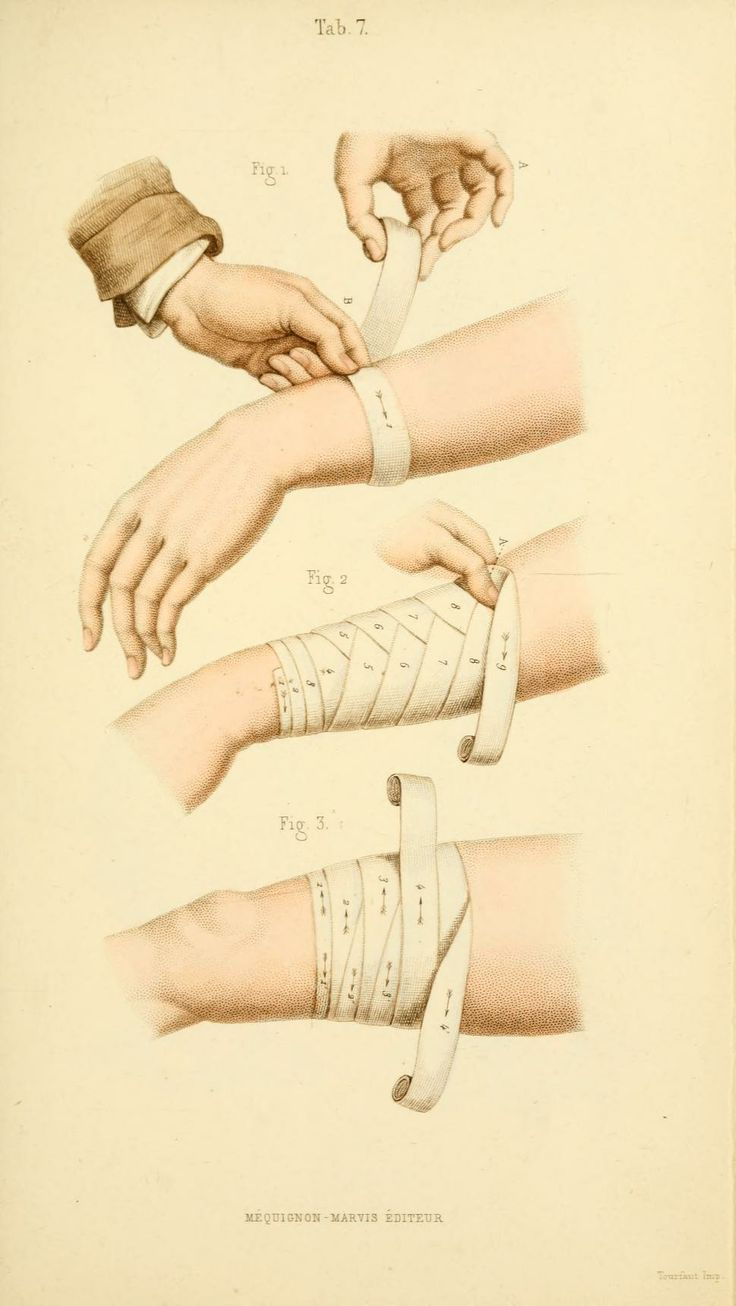 [Manual of surgical bandages, devices and dress... Bandages