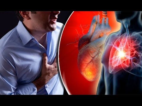 How to STOP Heart Attack FAST? LESS Than 60 Seconds YOU Can STOP HEART ATTACK By USING This Remedy https://youtu.be/MV0FP7LLjI8 Stop a Heart Attack In 60 Seconds with Cayenne Pepper  Heart attacks can be devastating and are leading causes of death. Living with the threat of you or a loved one suffering an attack is frightening to say the least. You can however prepare for such an instance to minimize the consequences. Firstly call for medical help as soon as the signs of a heart attack…