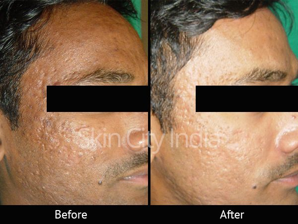Pin By Skincityindia On Acne Scar Treatment At