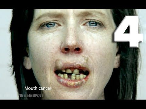 WARNING: This countdown contains graphic material that some viewers may find upsetting or disturbing. Viewer discretion is advised. TOP 40: SCARIEST ANTI-SMOKING COMMERCIALS (4/4) - YouTube