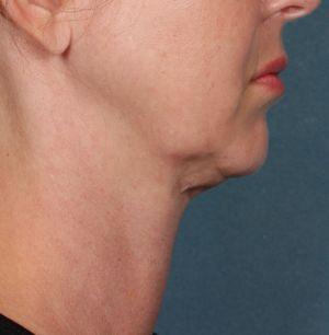 New Fat Melting Procedures Coming to Advanced Laser & Skin Center - http://advancedlaserandskincenter.com/wp-content/uploads/2015/11/KYBELLA-Patient-Before-Side-View-300x306.png - http://advancedlaserandskincenter.com/latest-news/new-fat-melting-procedures-coming-to-advanced-laser-skin-center/