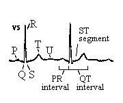 Normal ECG / EKG #EKG #CardiovascularSystem