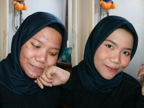 DAILY MAKEUP UNTUK KULIT BERJERAWAT | PAKAI MAKEUP MURAH makeup-project.ru…