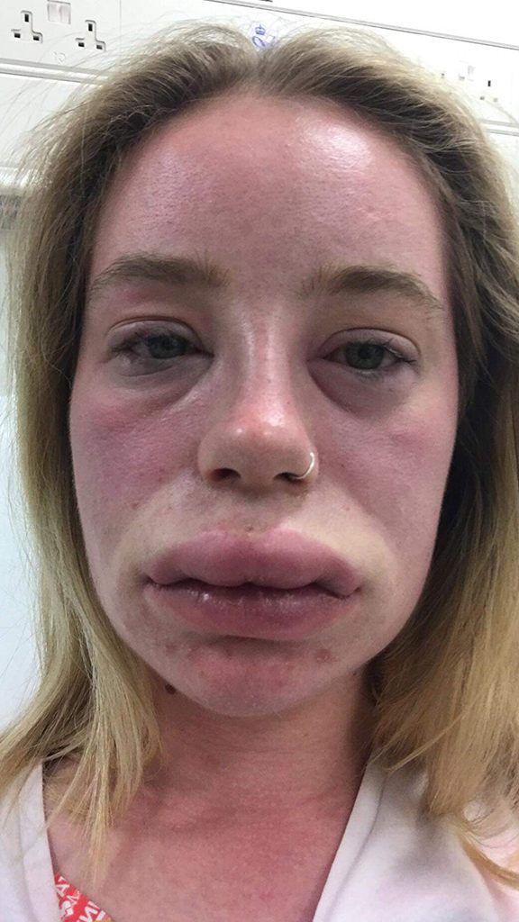 Woman Left Suffering From Swollen Lips Full Body Rash For Weeks