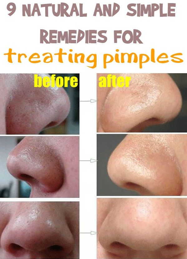 how to close pores after removing blackheads naturally