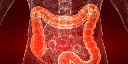 colitis ulcerosa Clic en Imagen http://colonirritabletratamientos.com/dieta-para-la-colitis-ulcerosa/