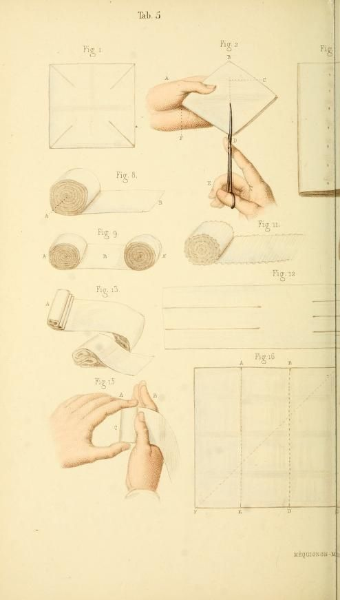 Manual of surgical bandages, devices and dress, 1859 (pinterest.com/pin/287386019948326046).