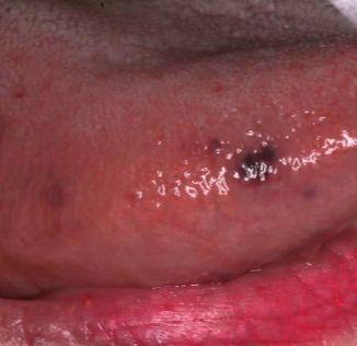 Tiny black dot under skin