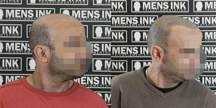 Tricopigmentazione effetto rasato www.mens-ink.com Scalp micropigmentation shaved effect www.mens-ink.com