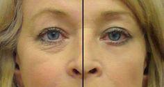 Un super aceite de 2 ingredientes, el mejor remedio casero contra las arrugas alrededor de los ojos | La Salud Es Todo