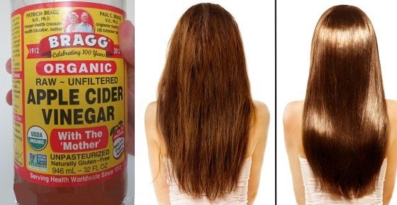 Apple cider vinegar (ACV) is a well-known folk remedy that treats many health conditions, including hair and scalp conditions. Many times harsh soaps and shampoos can strip the hair and skin of their natural oils, leaving them dry. One excellent treatment for the hair and scalp is the unfiltered apple cider vinegar, which cleanse the …