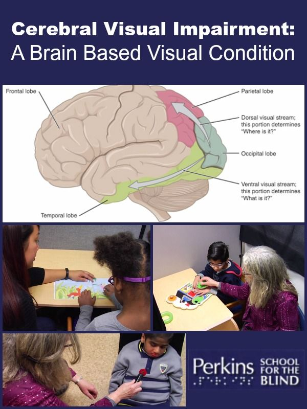 Free webcast with Dr. Amanda Lueck:  Cerebral Visual Impairment (CVI):  A Brain-Based Condition