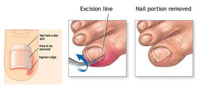 how to take care of an ingrown toenail
