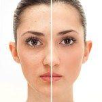 Microdermabrasion Facials and Make-up | Signature Day Spa