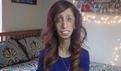 Once called 'world's ugliest woman', Lizzie Velasquez set for big screen appearance