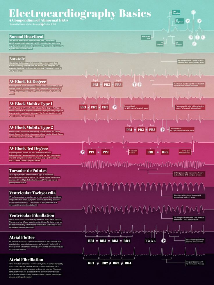 Electrocardiography Basics is a new infographic science illustration poster
