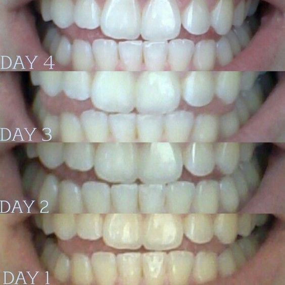 Coconut oil pulling. Take about a tablespoon coconut swish in your mouth be for breakfast for 20min. (DO NOT SWALLOW) After 20min spit it out in garbage can. Rinse your mouth with cup of warm salt water. Benefits, teeth whitening, reduces cavity pain, helps with dry mouth, helps Gums stop bleeding ect. R.H.::