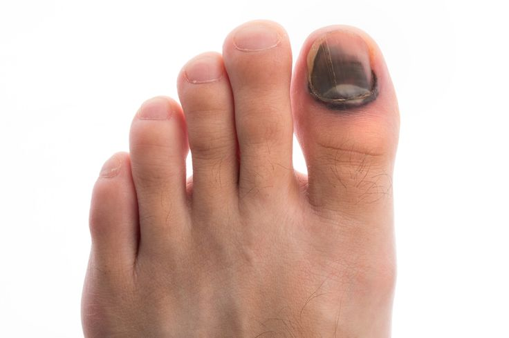 Find out exactly what to do if your toenail falls off.