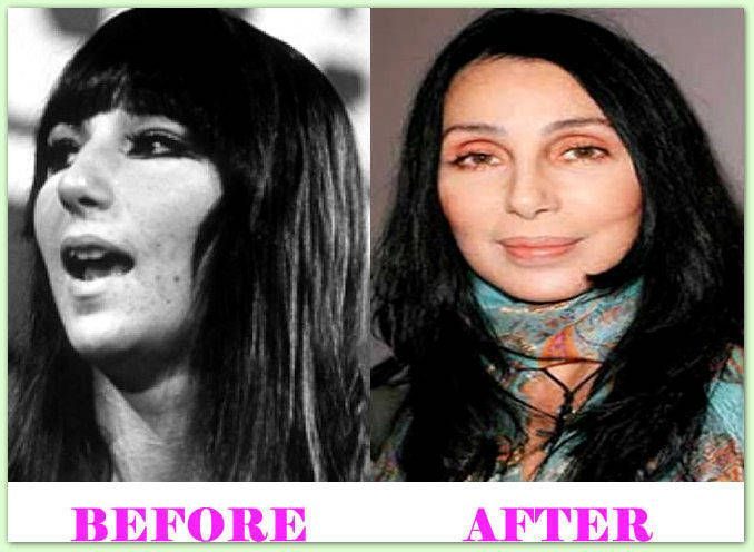 Cher Plastic Surgery Before And After #CherPlasticSurgery #Cher #celebritiesplasticsurgery