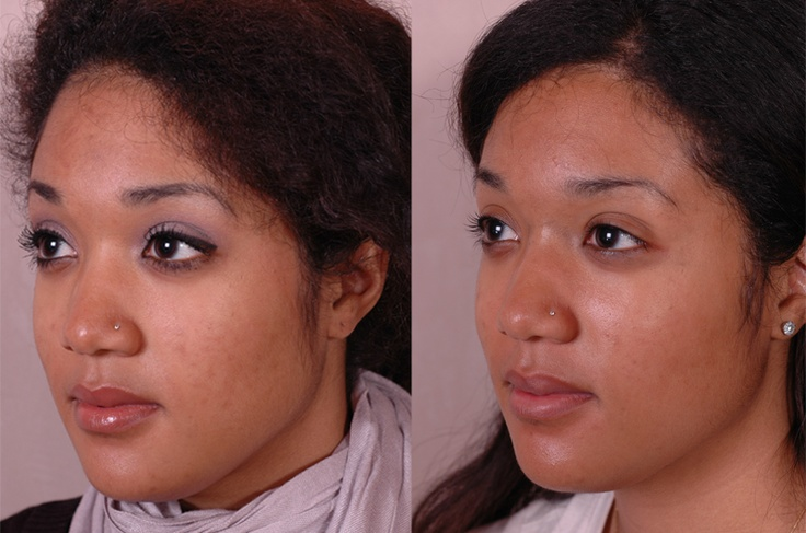 For acne, aging, hyper pigmentation, scarring, eczema, psoriasis and many other skin conditions 2