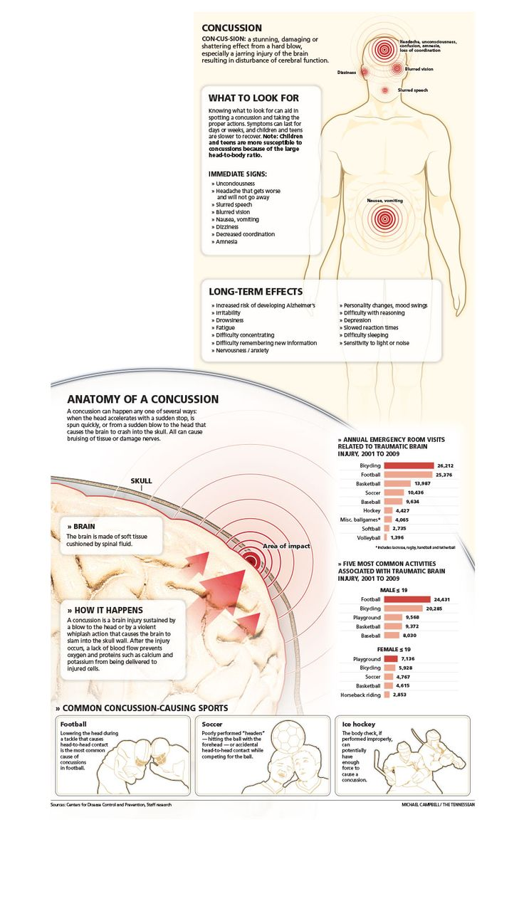 13 best images about Concussion management in schools on Pinterest