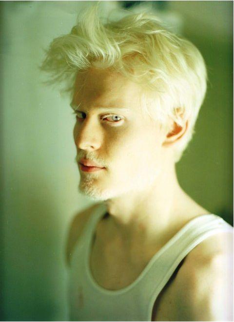 albino model Stephen Thompson