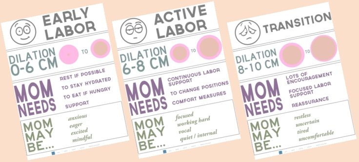 #ACOG #CAPPA Phases of Labor Poster Series