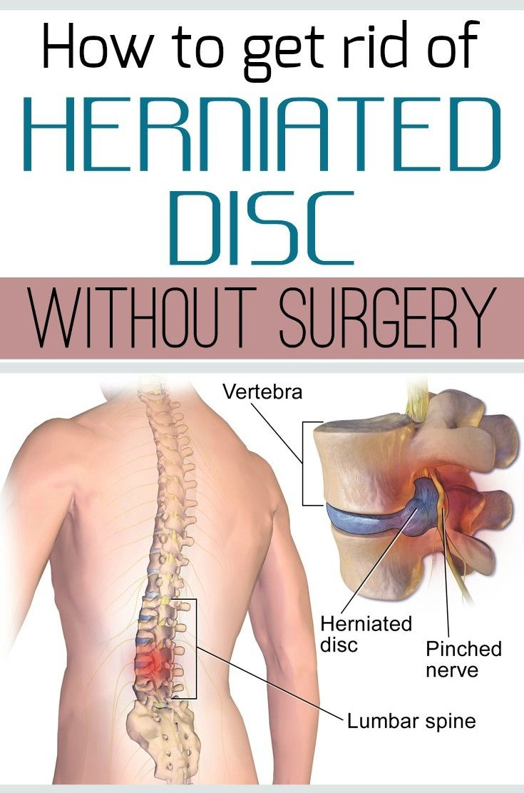 Natural Remedies For Herniated Disc In The Neck