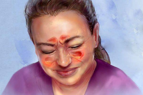 Zdravé dutiny umožňujú bezproblémový priechod vzduchu. Ak sú však opuchnuté azablokované, dáva sa tým priestor množeniu patogénnych baktérií, ktoré vedú knásledným infekciám. Príznaky atypy zápalov dutín Medzi najčastejšie príznaky zápalov dutín patria: horúčka bolesti tváre auší bolesti hlavy tvorba hlienov prípadný kašeľ, ak hlieny stekajú