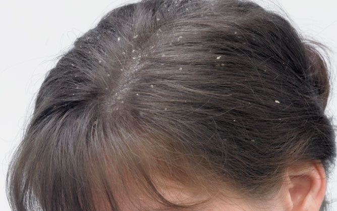 How to Make Your Hair Dandruff-Free | 1mhealthtips