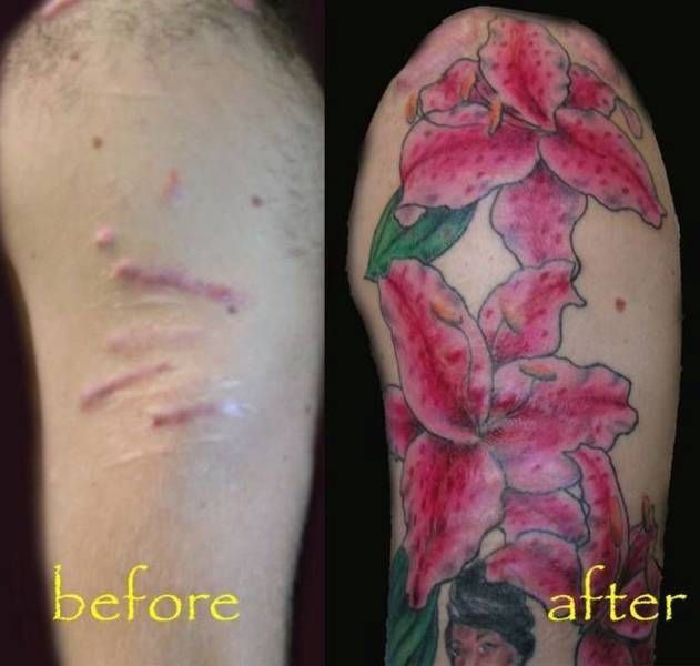 Tattoo For Self Harm Would So Get This On My Right Thigh: 17 Best Ideas About Tattoos To Cover Scars On Pinterest