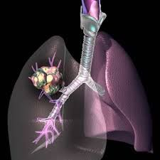 Non-Small Cell Lung Cancer (NSCLC) is the second most common cancer globally, and the most common cause of cancer-related mortality. Such a poor outlook, particularly for patients with advanced disease, has created a pressing need for improved therapeutic options. Enquiry @ http://www.researchbeam.com/non-small-cell-lung-cancer-therapeutics-in-major-developed-to-2021-emergence-of-immunotherapies-drives-growth-and-creates-a-competitive-second-line-market/enquire-about-report