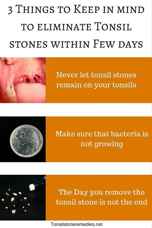 How long do tonsil stones last? Days? Weeks? or Years
