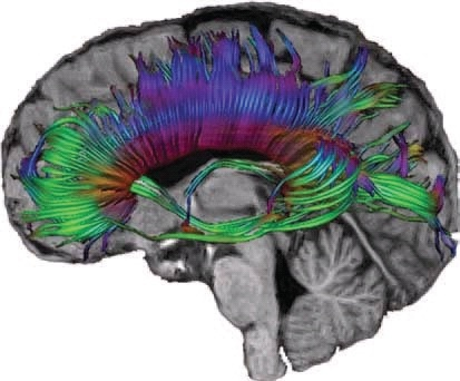 For my Monday lectures: DTI is a type of diffusion MRI used so that functions in the brain may be observed as they occur, (in vivo). The restricted diffusion of water through the brain tissue under examination is measured; it is often used to image white matter. The direction the neuronal axon bundles are oriented determines how water flows, for example, parallel bundles of nerve axons and their associated myelin sheaths facilitate diffusion of water molecules along their main direction.