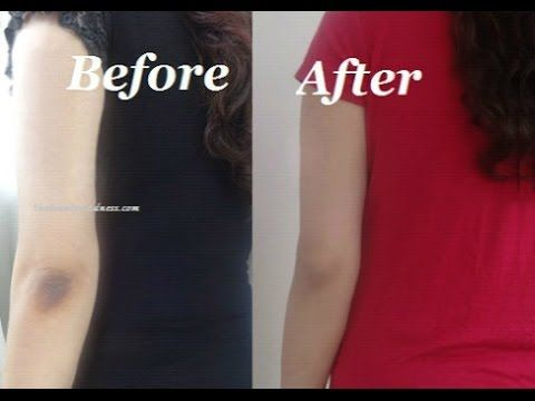 How to Get Rid of Dark Elbows and Knees Quickly