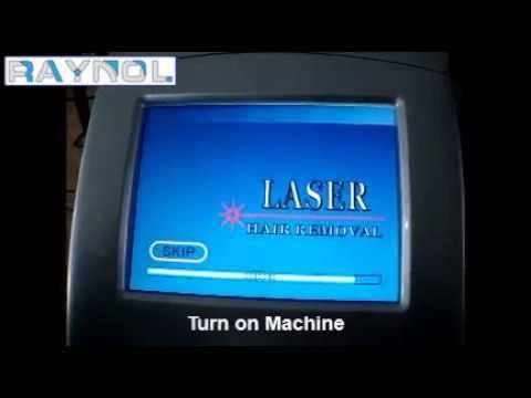 nd yag laser hair removal machine price