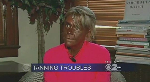 White woman overdoses on tanning