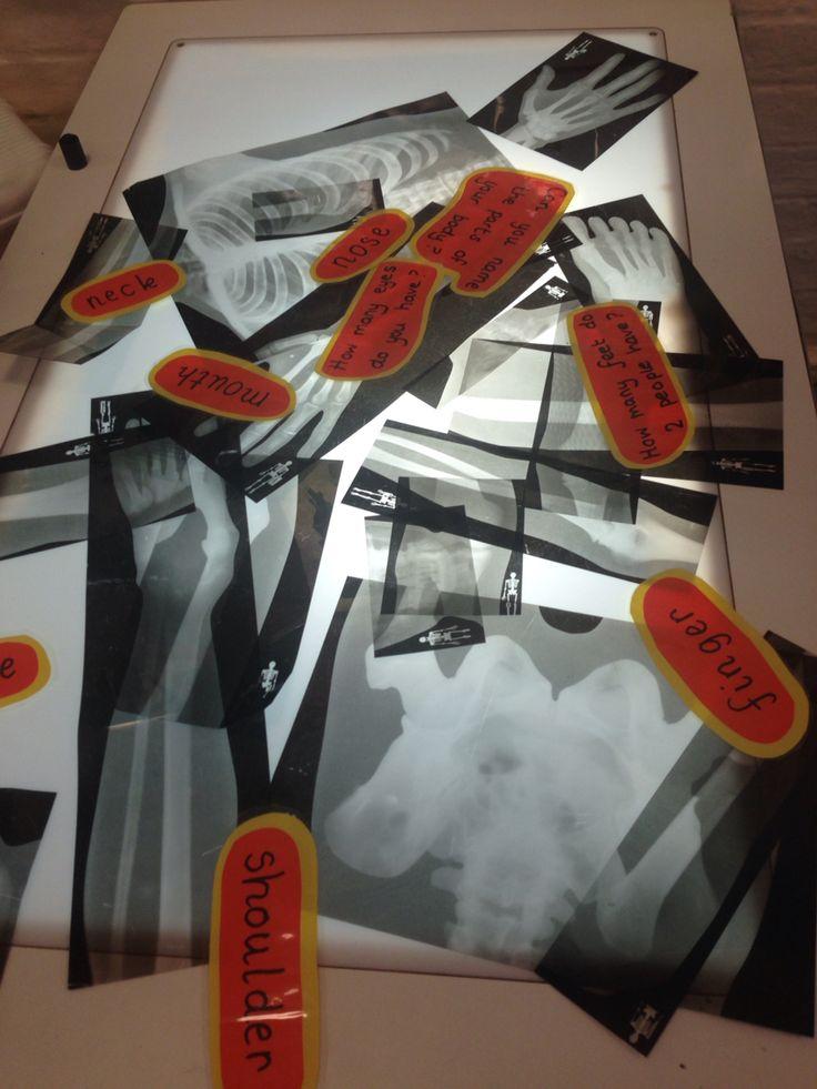 X-ray light box