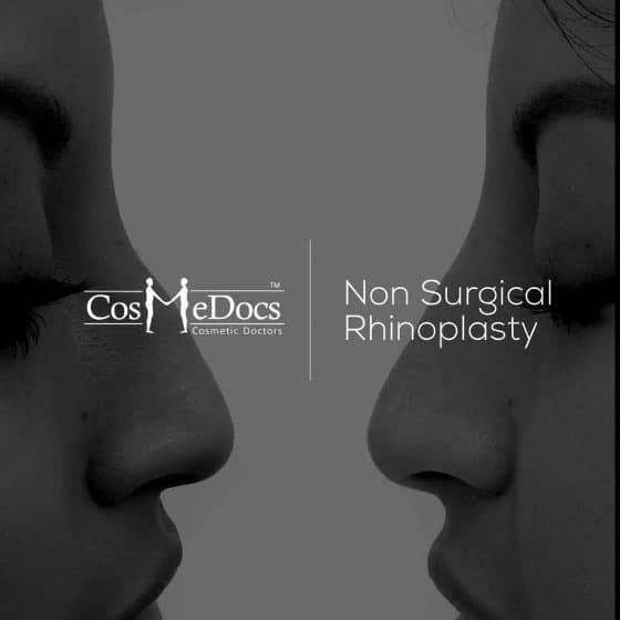 Is Non Surgical Nose Job Really An Alternative To The ...