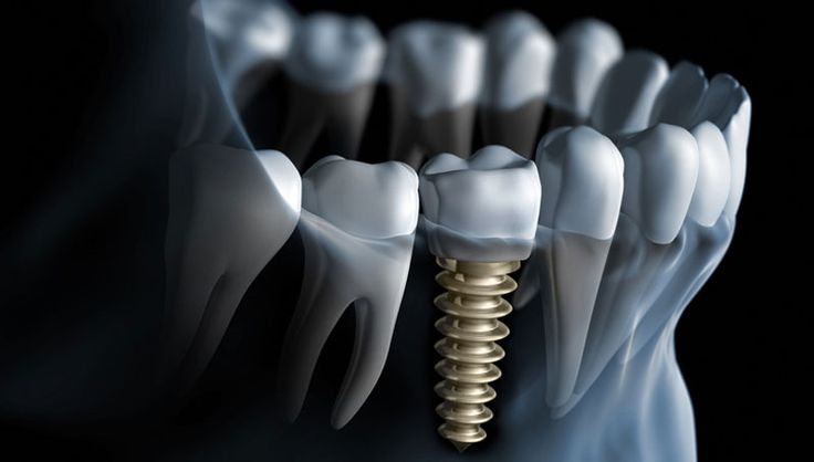 If you wish to get the best dental implants at Pennsylvania done then you may contact Media Brite Smiles for high-quality dental care at an affordable rate.