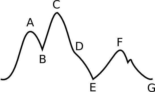 IABP - Intra-aortic balloon pump scenarios