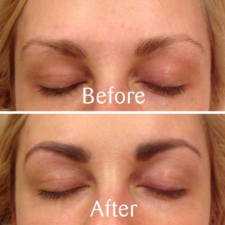 Simple More TS Brow before and after action This time by Nikki tsbrows