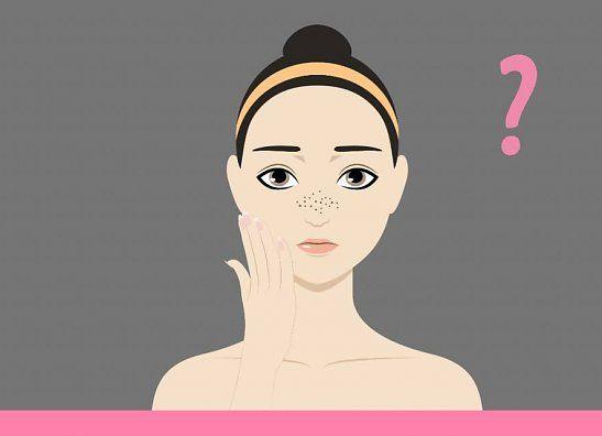 Grove porien... hoe kom je er vanaf en welke huidverzorging gebruik je?