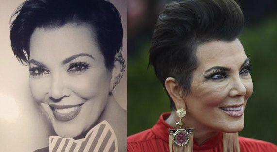 Kris Jenner Plastic Surgery Before And After Facelift