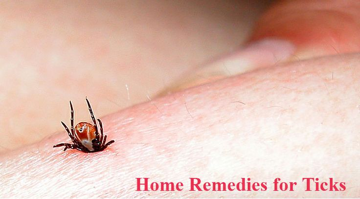 Natural Home Remedies For Ticks On Dogs