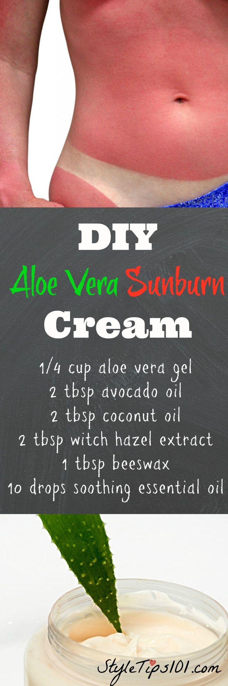 Prevent burnt, peeling skin with this DIY aloe vera sunburn cream!